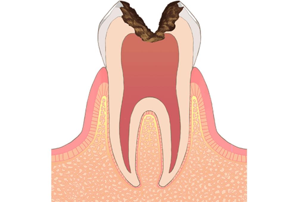 神経にまで進行した虫歯