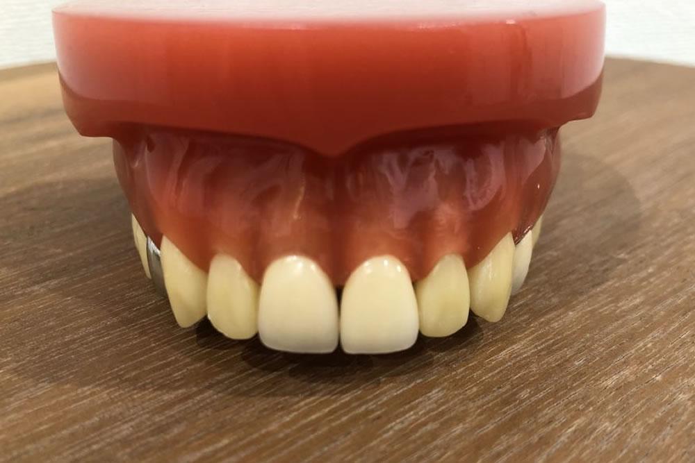 歯を残す基準