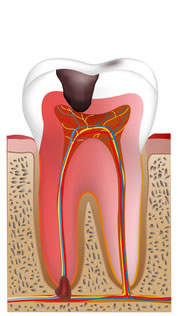 重症化した虫歯