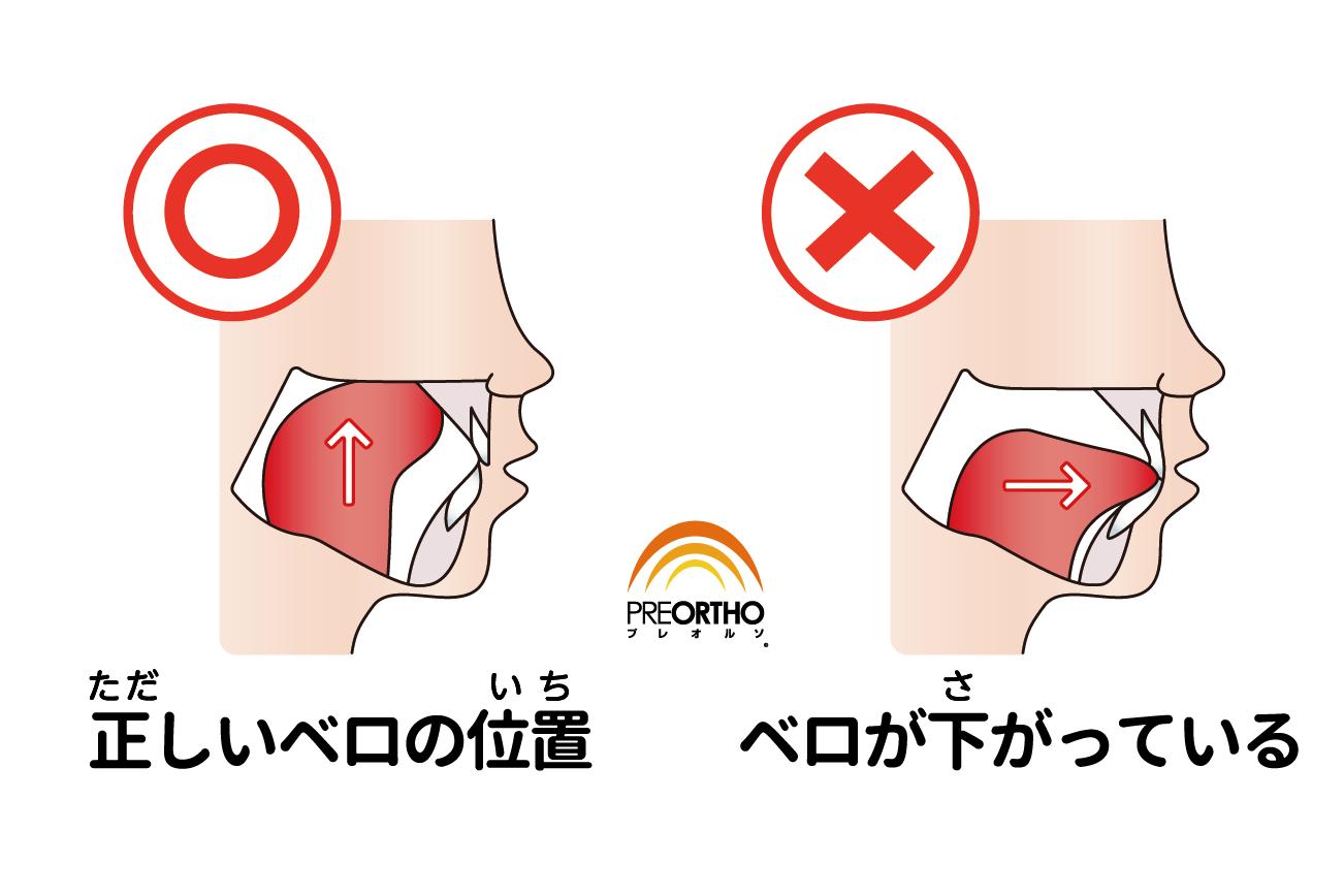 舌 の 正しい 位置