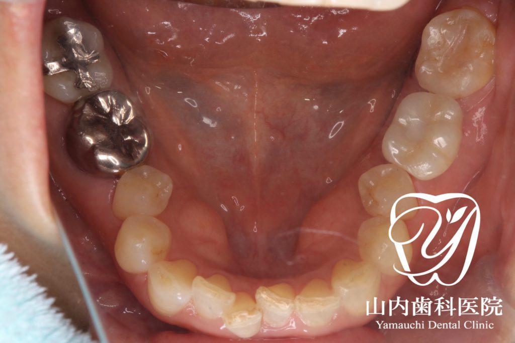 術後の口腔内写真