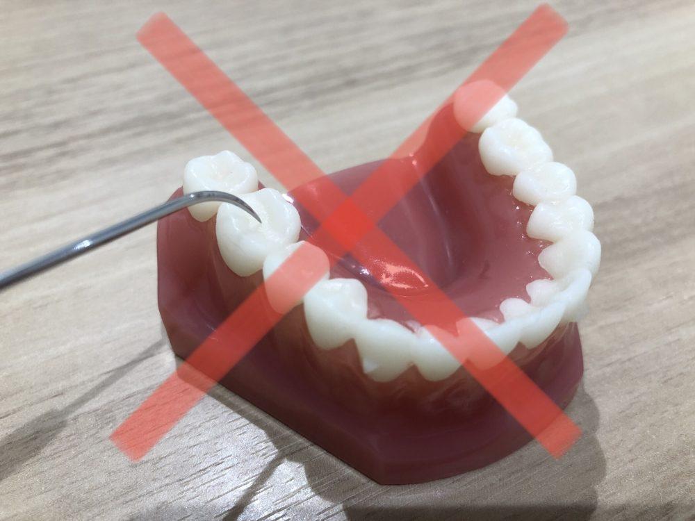 虫歯初期は削らない!