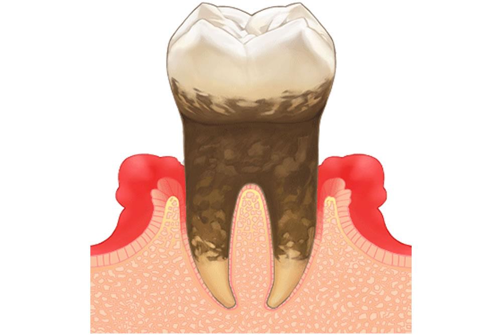 定期検診・歯周病