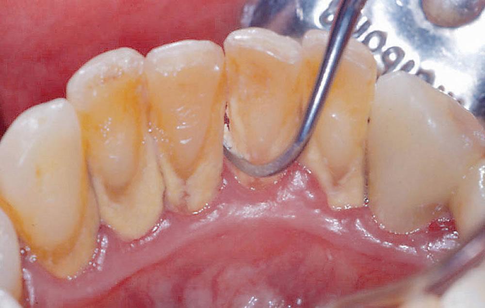 検診・歯のクリーニング