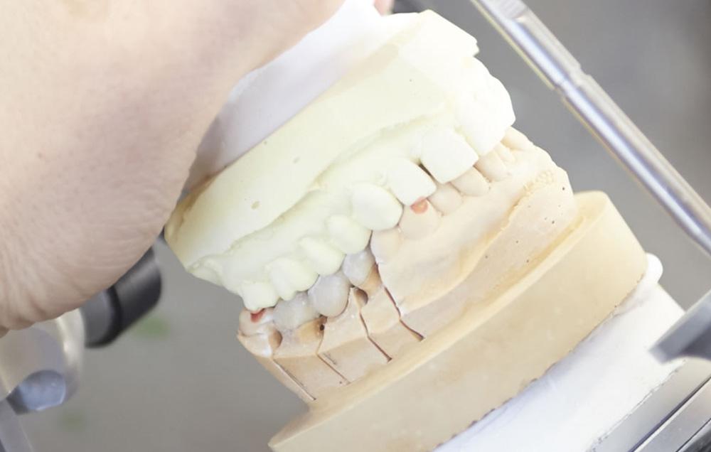 入れ歯の調整・作製