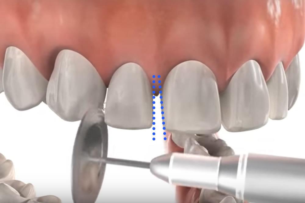 歯幅を縮小