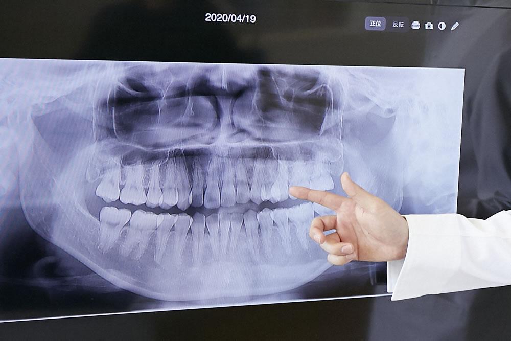 歯並び・咬み合わせに精通した医師
