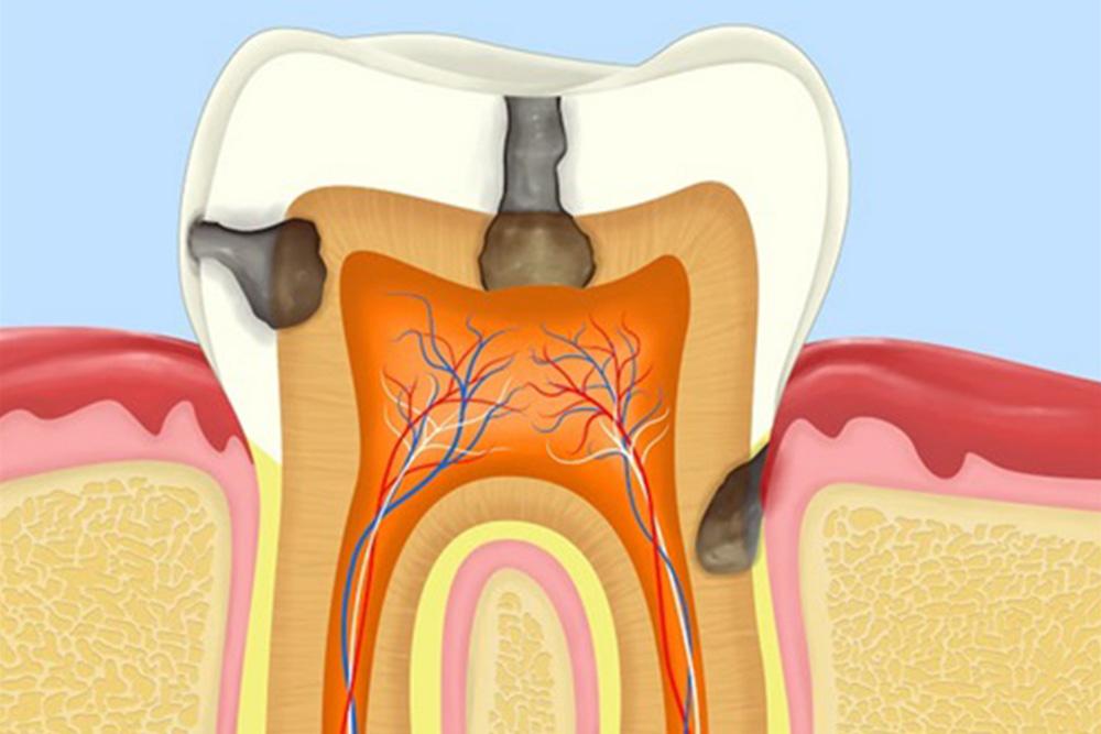 虫歯や歯周病