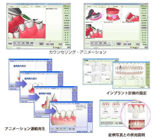 アニメーションソフト